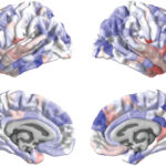 Genes altered in autism may control brain's thickness